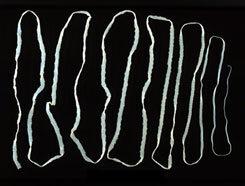 Galandféreg tunetei emberben, Galandféreg-fertőzés