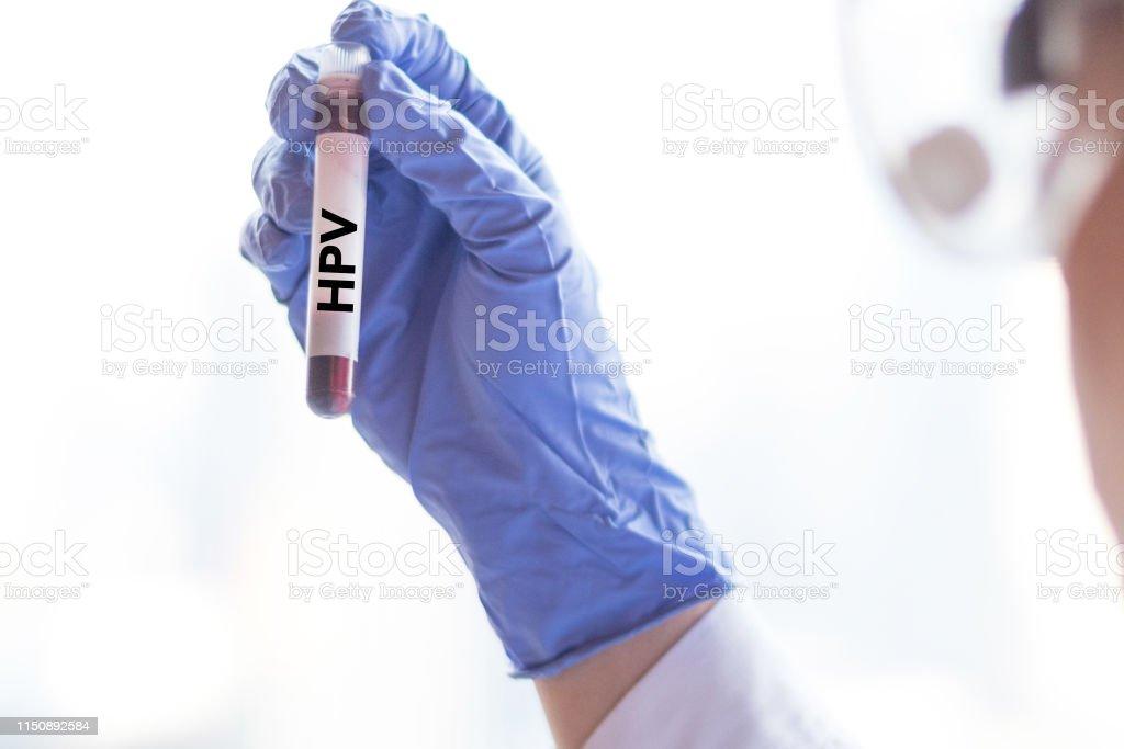 sto papillomavírus