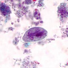 Giardiasis tünetei és kezelése, Diéta felnőtteknél a giardiasis miatt