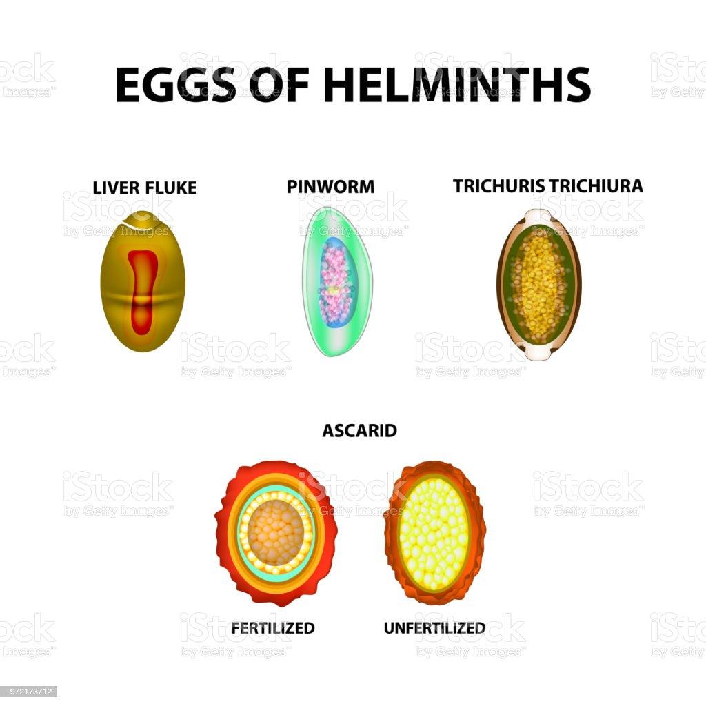 férgek okozhatnak prosztatagyulladást fő emberi helminták