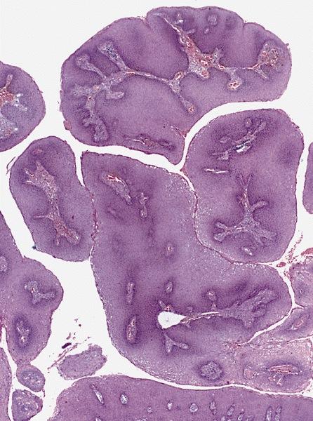 condyloma a női gyógyszerekben)