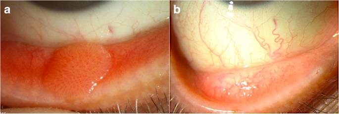 a maxilláris sinus papilloma)