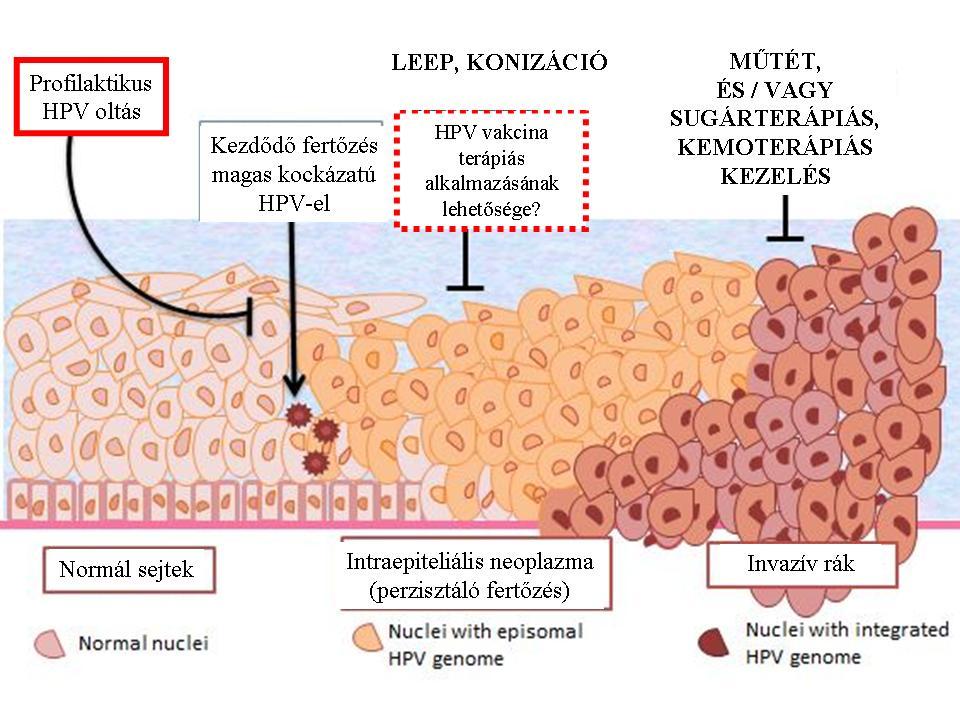 hpv vakcina és a rák megelőzése