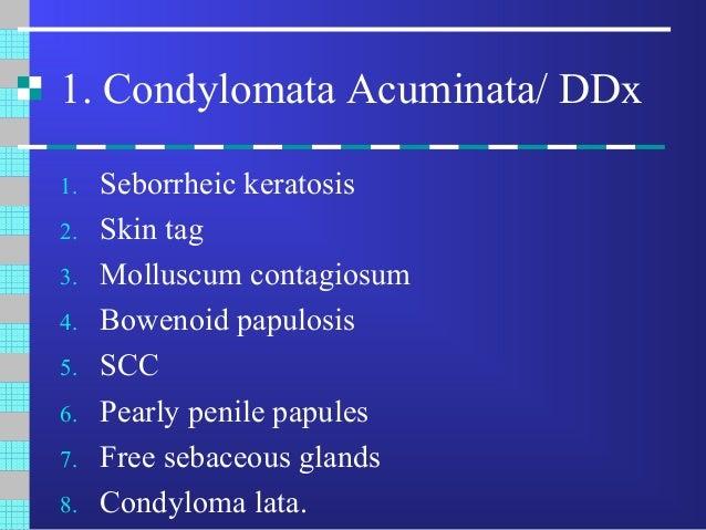 condyloma acuminata ddx paraziták típusai és kezelése