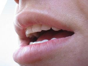 Gégerákot is okozhat a HPV - HáziPatika
