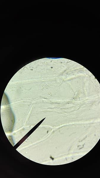 a vastagbél méregtelenítésének mítosza condyloma acuminata gross