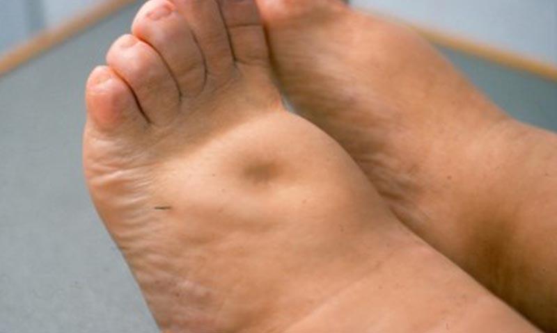 lábak papillomatosis