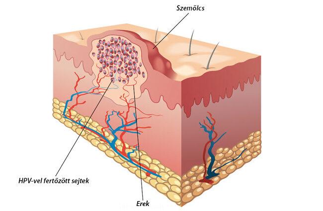 az emberi papillomavírus szemölcs)