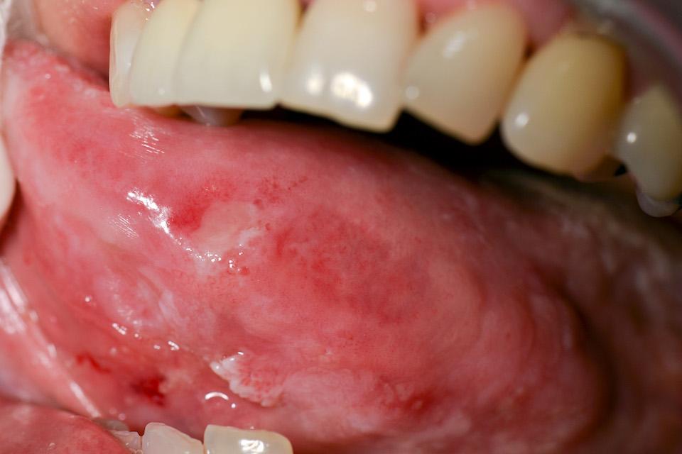 Možnost ozáření zhoubných nádorů kůže