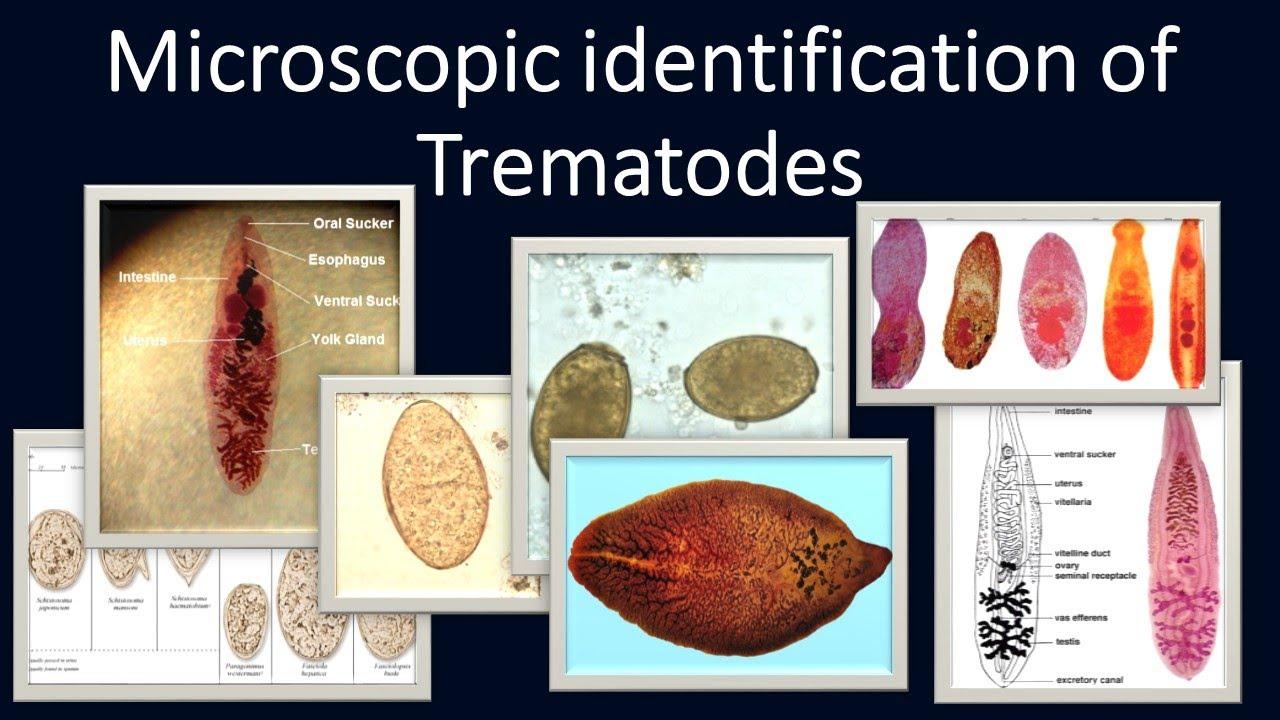trematode paraziták csigákban)