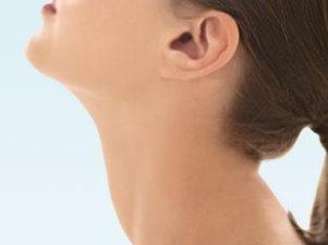 2. stádiumú nyaki rák