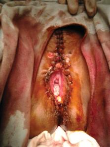 humán papilloma condyloma