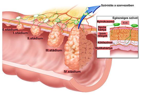 A vastagbélrák utolsó stádiumú tünetei