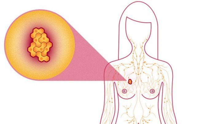 Jó vagy rossz?! Megkönnyebbülhetünk, ha jóindulatú a daganat?
