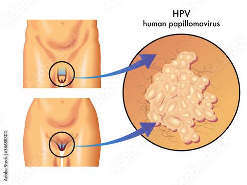 hpv vírus wie bekommt man das)