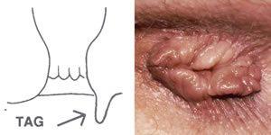 papilloma végbélnyílás nő tünetei