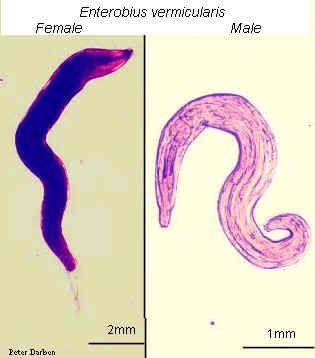 enterobius vermicularis patofiziológia)