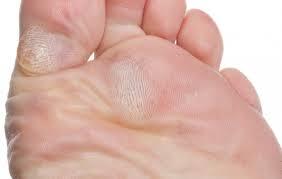 pikkelyes papilloma láb