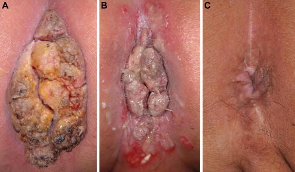 a condyloma tumor