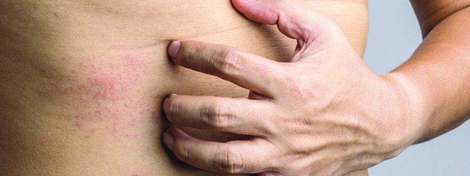 a bőr viszketése férgek kezelésével)