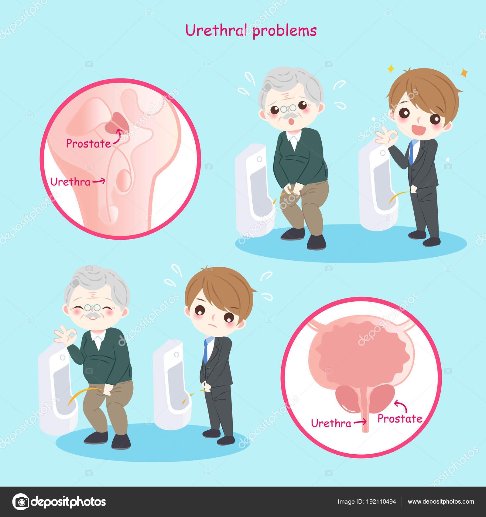 a condyloma urethra tünetei