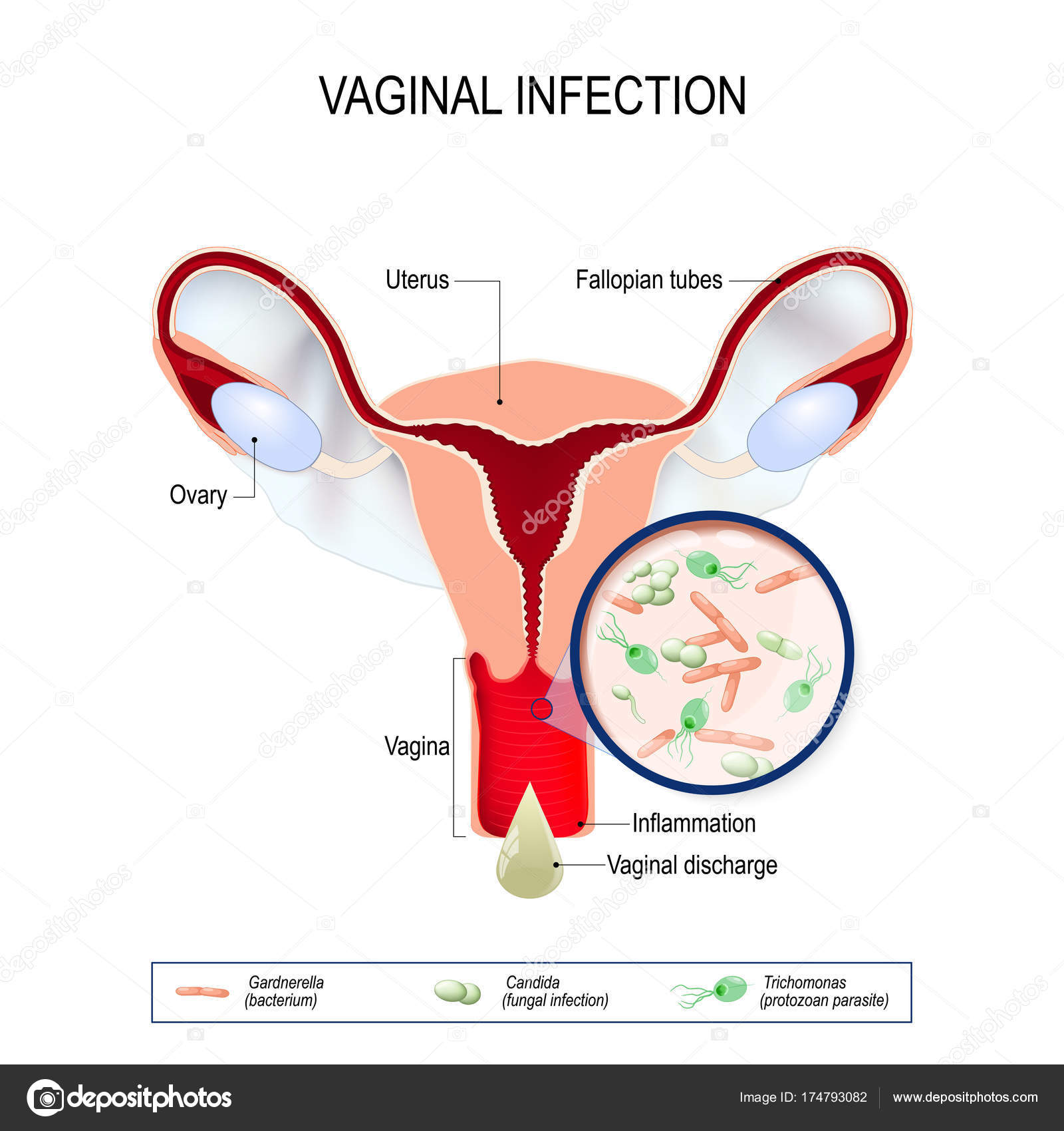 a genitális szemölcsök nekrózisa