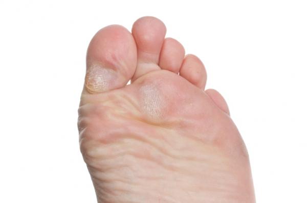 a lábujjak közötti száraz bőrkeményedések kezelése)