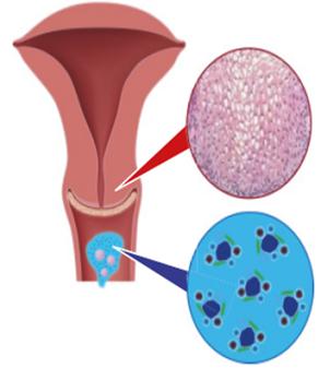 a papilloma vírus blokkolja a ciklust szemölcs kezelés eltávolítása