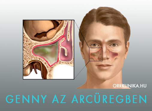 a rhinitis fertőző tünetei)