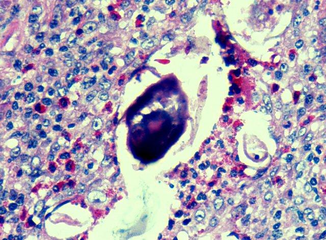 Bilharziózis