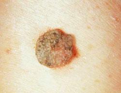 Papilómák: a diagnózis és kezelés típusai, okai, jellemzői - Lipoma
