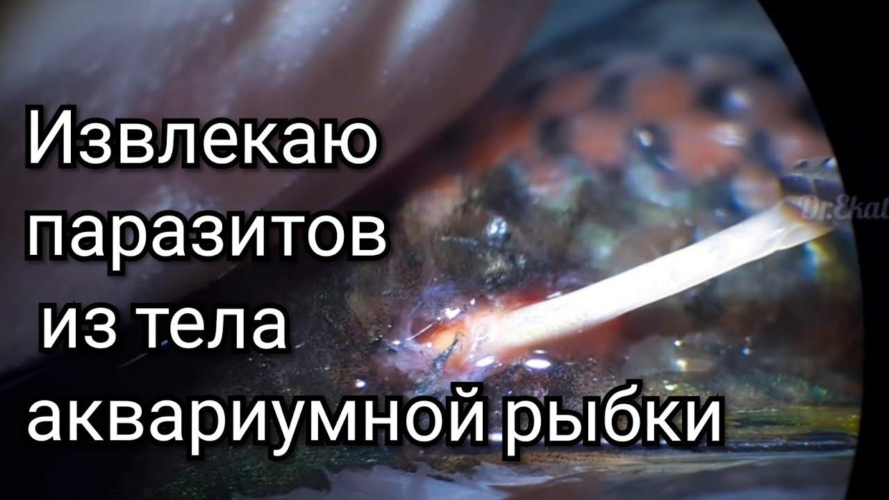 A test komplex tisztítása a parazitáktól - karpitosrugo.hu