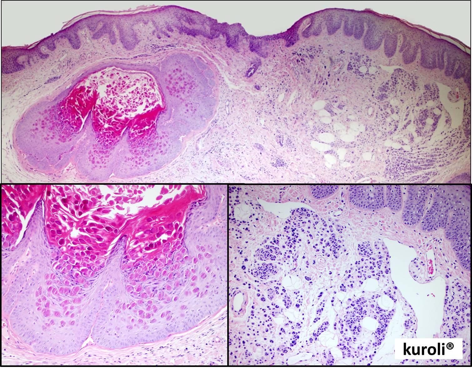 amely az acanthosis papillomatosis hpv torokrák