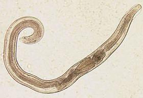 az emberi fonálféreg vázlata