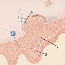 parazitafertőzés kezelése papilloma in gat