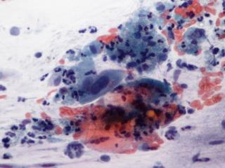 hogyan szerezhet hpv vírus nhs-t