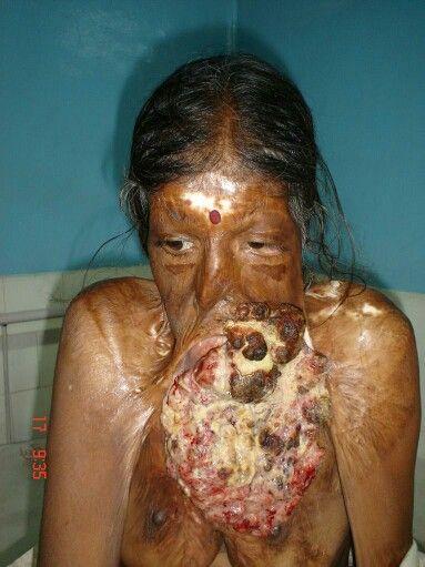 condyloma tumor