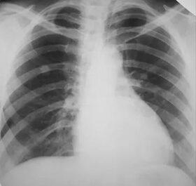 Makacs köhögés és rekedtség - A tüdőrák 6 legfontosabb tünete