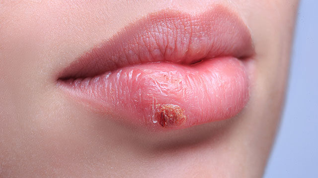 hpv genitális herpeszvírus