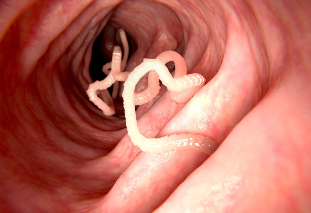 Plázs: Vírusok is okozhatják a tüdőrákot | karpitosrugo.hu