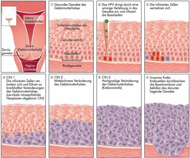 papilloma vírus hpv cin 1)