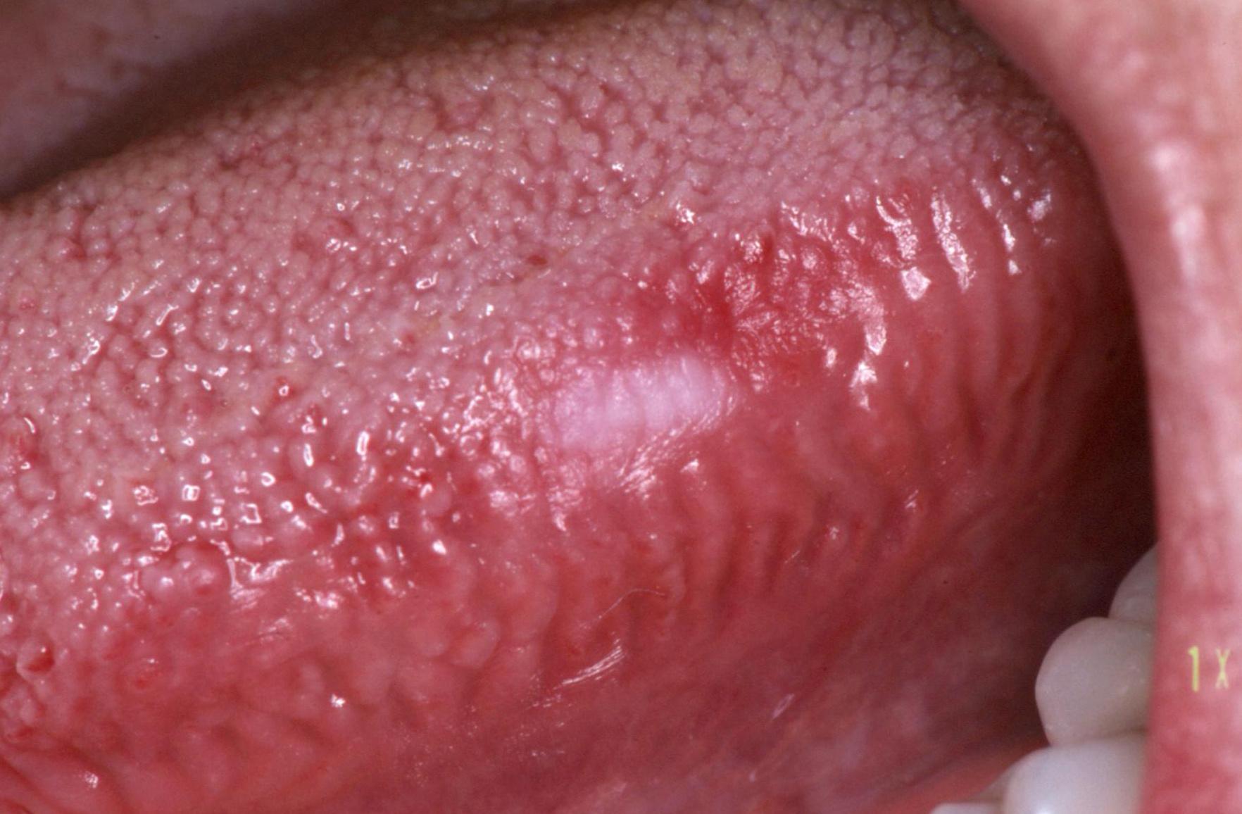 emberi papillomavírus és szájrák