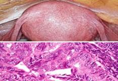 endometrium rák nccn)