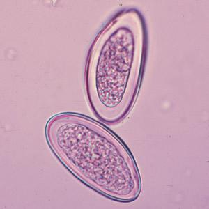 enterobius vermicularis yumurtas nedir