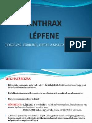 Anthrax tünetei és kezelése