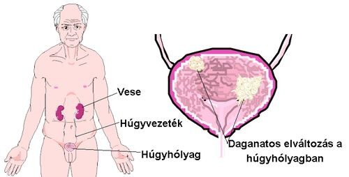 húgycső rák férfi tünetek