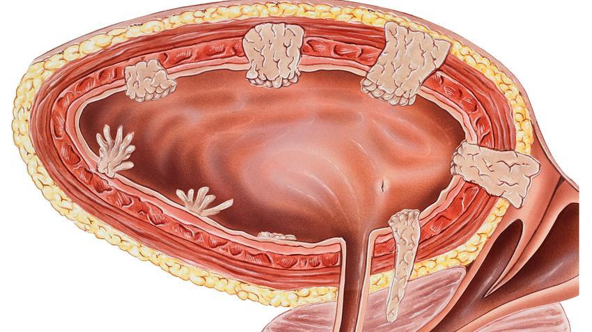 hólyag papilloma és daganat