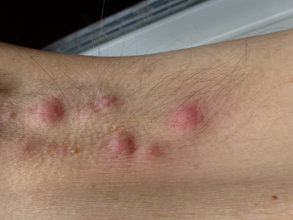 hónaljgyulladás