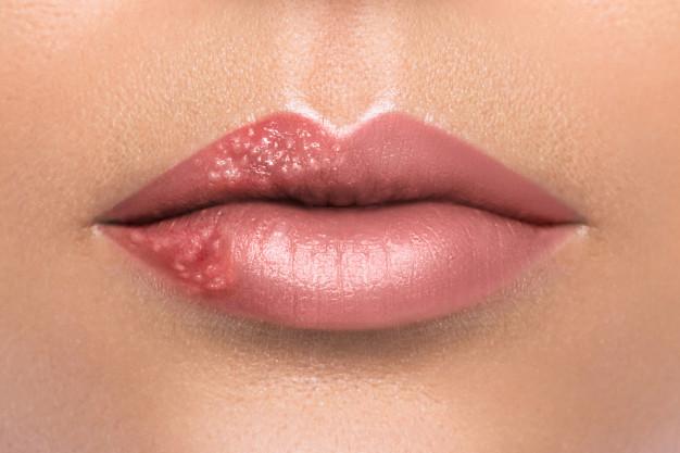szemölcsök az ajkakon okozzák a szeméremtest több szemölcsét