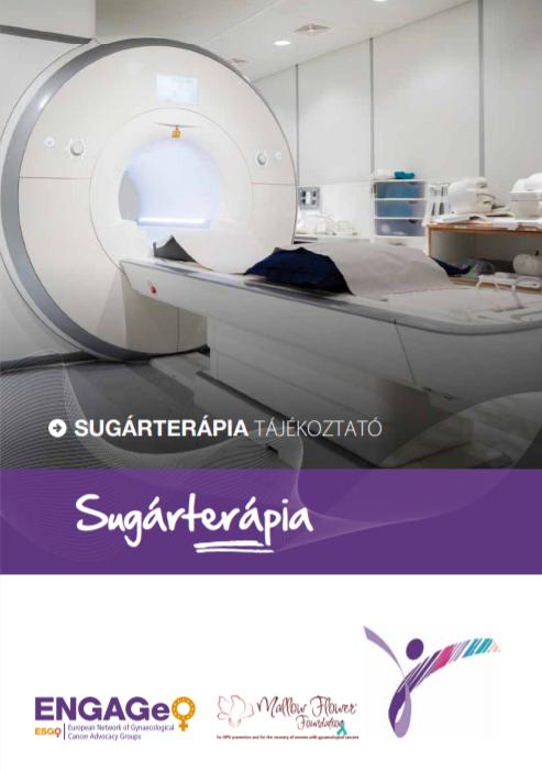 Sugárkezelés (sugárterápia, radioterápia)